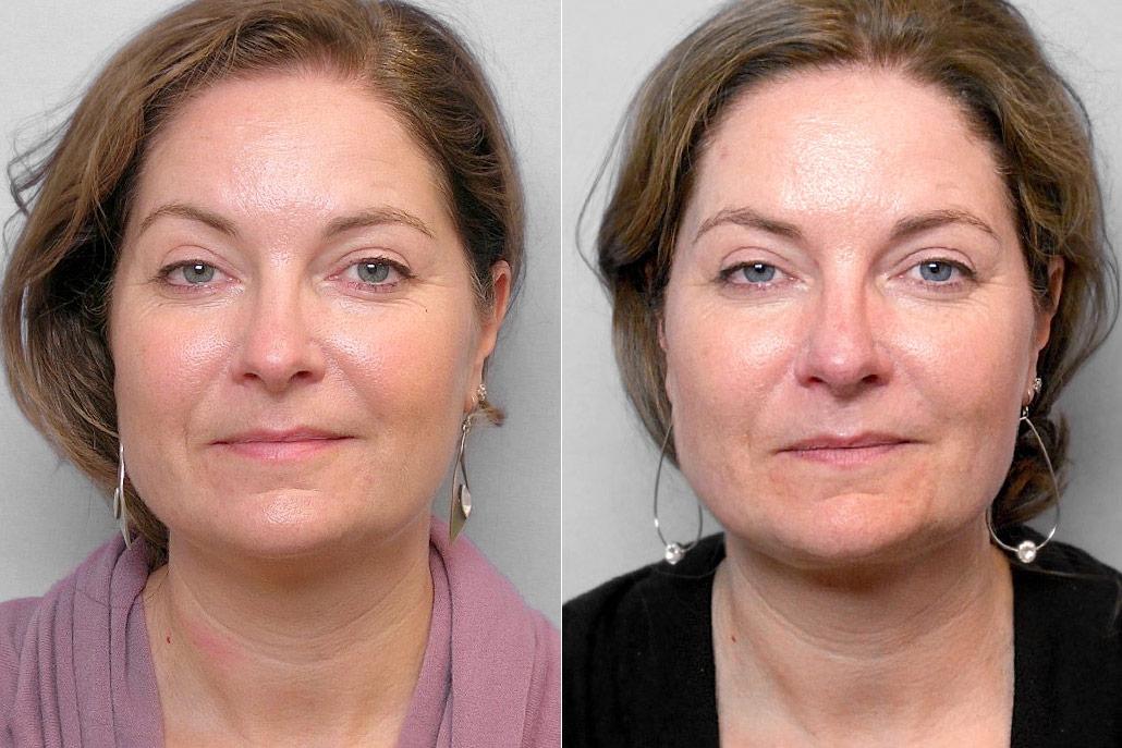 Före- och efterbild av kvinna, som genomgått en fettsugning av hals.