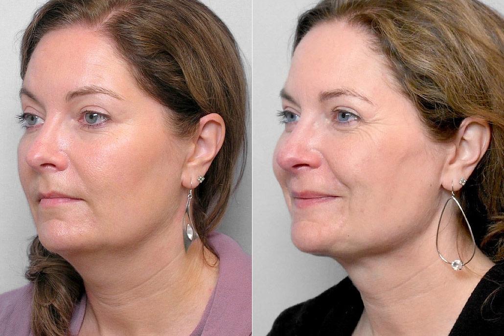 Bild av kvinnas halvprofil, före och efter genomförd fettsugning av hals.