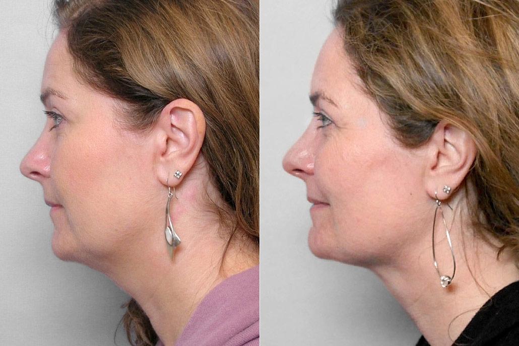 Bild av kvinnas profil, före och efter genomförd fettsugning av hals.