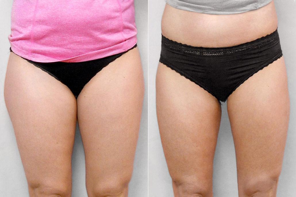 Bild av kvinnas framsida, före och efter genomförd fettsugning av lår.