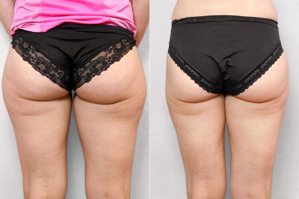 Bild av kvinnas baksida, före och efter genomförd fettsugning av lår.