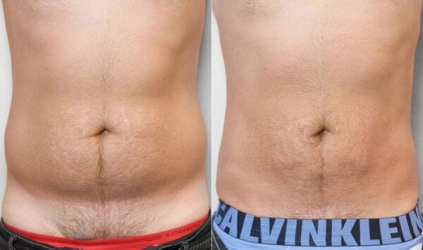 Före- och efterbild av en man som genomgått en fettsugning av mage.