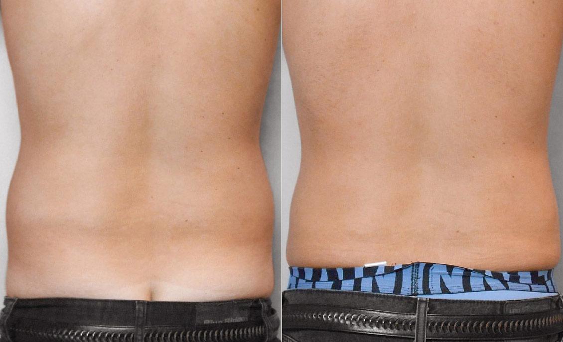 Bild av rygg på person som gjort fettsugning av mage.