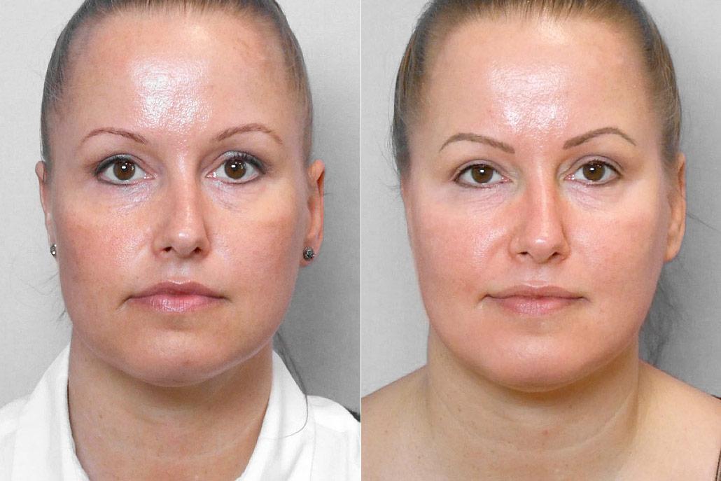 Före- och efterbild på kvinna som genomgått behandling med Obagi hudvårdsprogram med endast krämer.