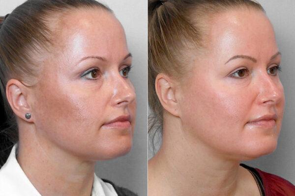 Före- och efterbild på kvinna i höger profil som genomgått behandling med Obagi hudvårdsprogram med endast krämer.