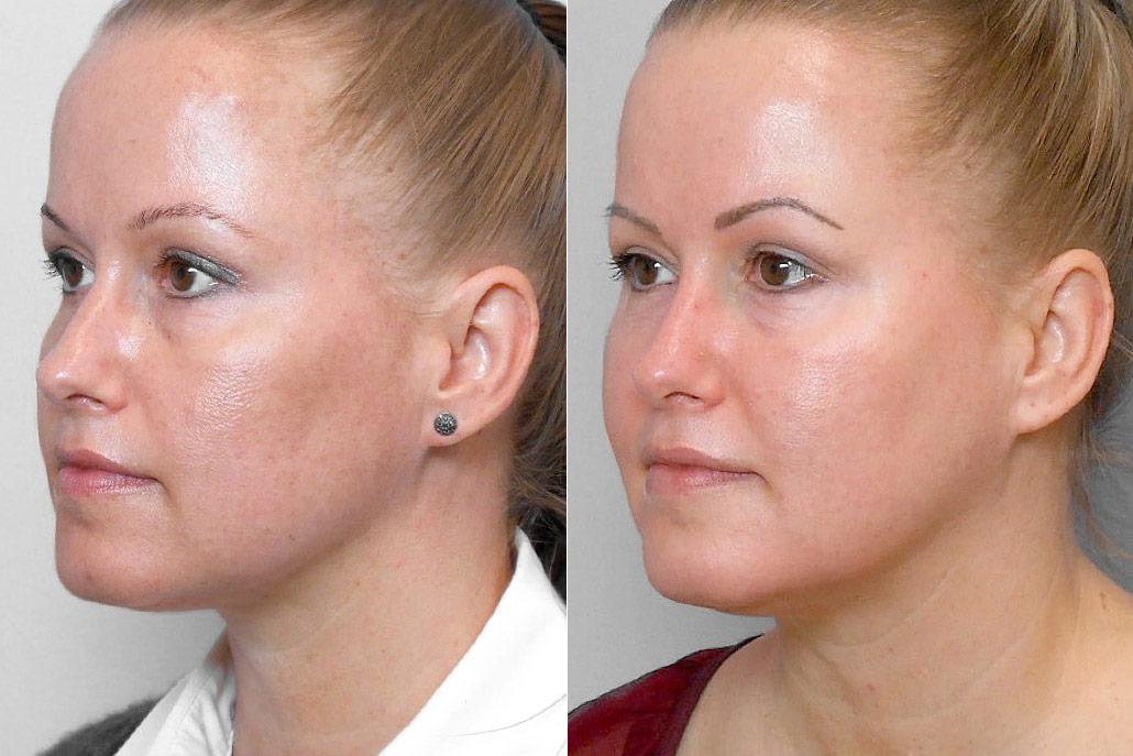 Före- och efterbild på kvinna i vänster profil som genomgått behandling med Obagi hudvårdsprogram med endast krämer.