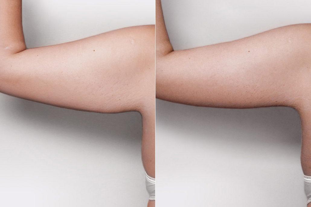 Bild av person som genomfört överarmsplastik - före och efter.