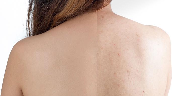 Före och efter behandling av akne på rygg hos tjej