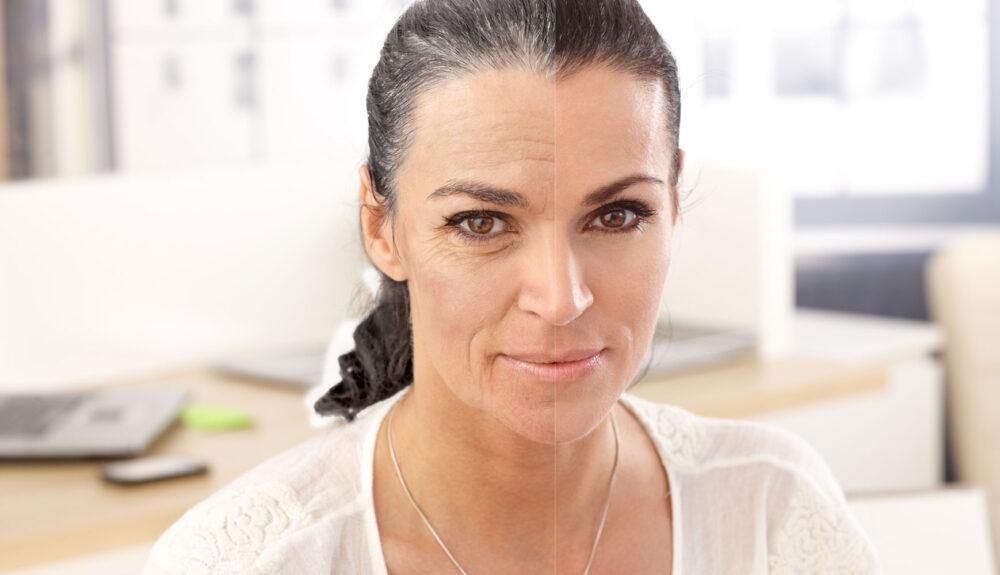före och efter ansiktsbehandling hos äldre kvinna med åldrande hud
