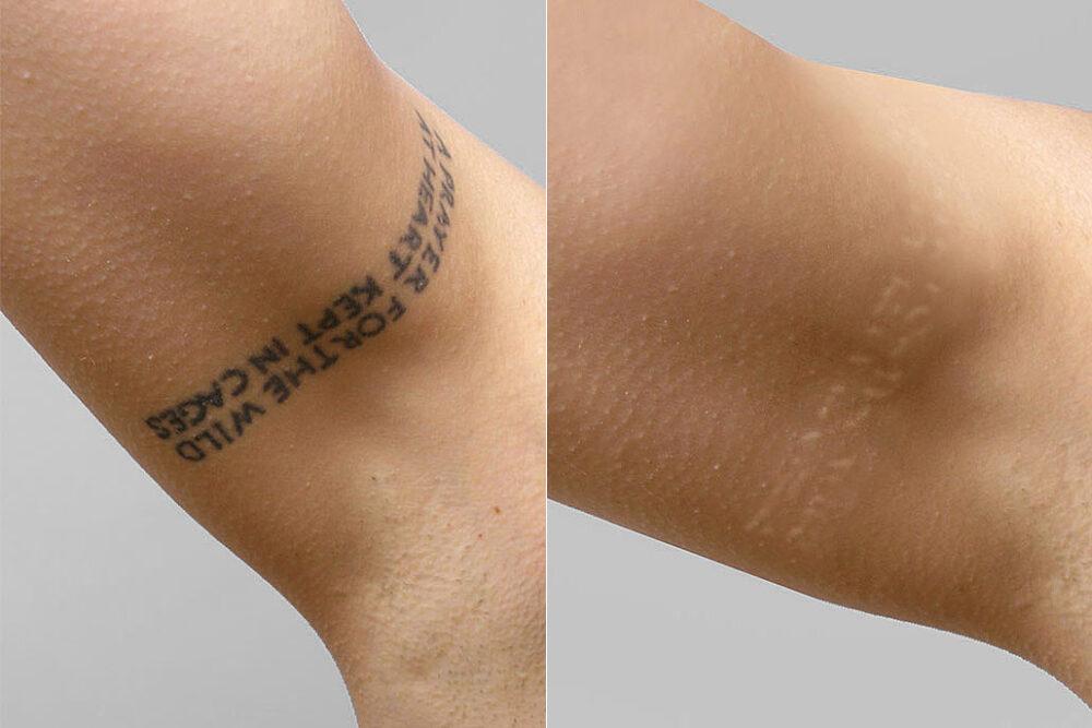 Före- och efterbild på resultatet efter 11 behandlingar för tatueringsborttagning med NdYAG-laser.