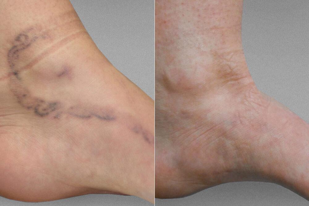 Före- och efterbild på resultatet efter 9 behandlingar för tatueringsborttagning på foten.