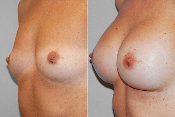 Före- och efterbild i vänster halvprofil, på resultatet av en bröstoperation med bröstimplantat.