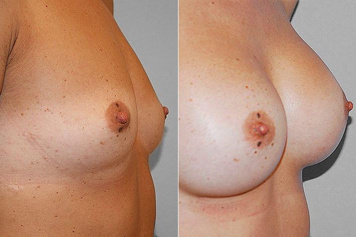 Före- och efterbild i höger halvprofil, på resultatet av en bröstoperation med bröstimplantat.