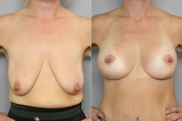 Före- och efterbild på kvinna som genomfört ett bröstlyft samt fått bröstimplantat.