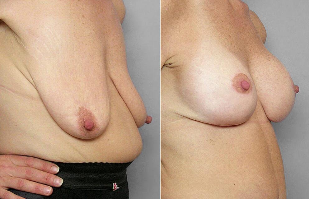 Före- och efterbild på kvinna i halvprofil som genomfört ett bröstlyft samt fått bröstimplantat.