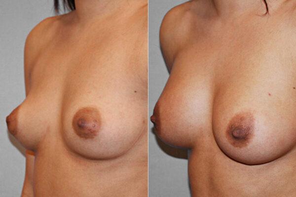 Vänster halvprofil av kvinna som genomfört en bröstförstoring med bröstimplantat Mentor anatomiska. Före- och efterbild.