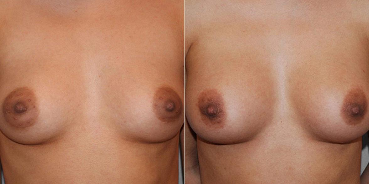 Kvinna som genomfört en bröstförstoring med bröstimplantat Mentor anatomiska. Före- och efterbild.