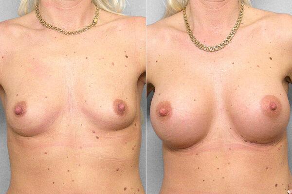 Resultatet efter en bröstförstoring med bröstimplantat Mentor Siltex Round High Profile, Cohesive. Före- och efterbild.
