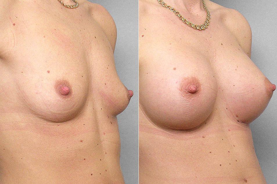 Bröstförstoring med bröstimplantat Mentor Siltex Round High Profile, Cohesive. Före- och efterbild i höger halvprofil.