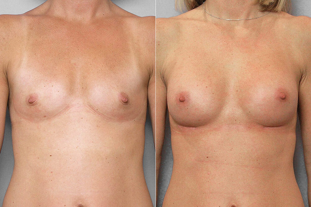 Resultatet i en före- och efterbild av bröstförstoring med bröstimplantat Mentor Siltex Moderate plus, 200 ml.