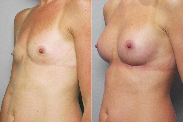 Före- och efterbild i vänster halvprofil, av bröstförstoring med bröstimplantat Mentor Siltex Moderate plus, 200 ml.