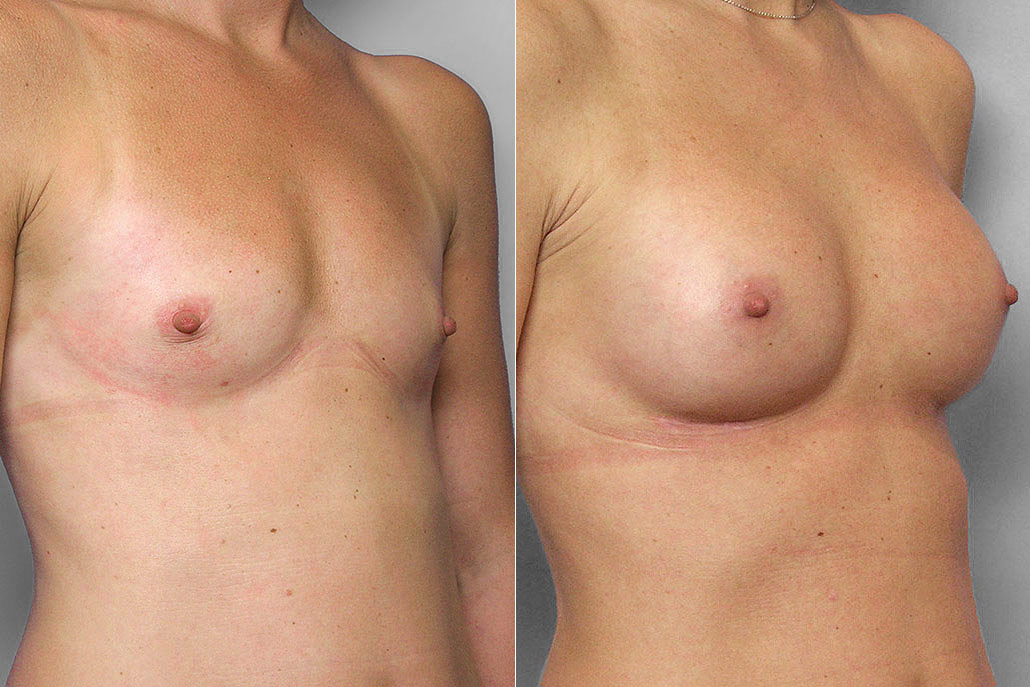 Före- och efterbild i höger halvprofil, av bröstförstoring med bröstimplantat Mentor Siltex Moderate plus, 200 ml.