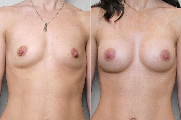 Före- och efterbild på resultat av kvinnas bröstförstoring, med bröstimplantat Mentor Siltex Round Cohesiv I, 225 ml.