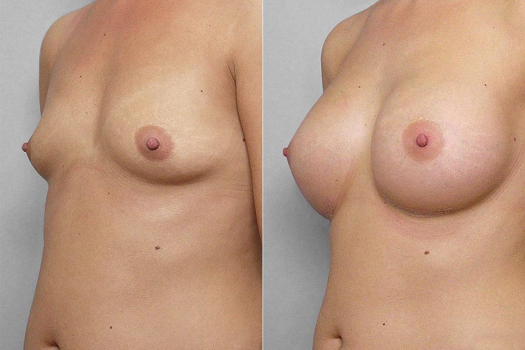 Bild på kvinnas vänstra halvprofil, före + efter bröstförstoring med implantat Mentor Cohesive III Medium high profile.