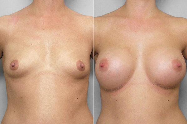 Bild på kvinna före + efter bröstförstoring med implantat Mentor Cohesive III Medium high profile.