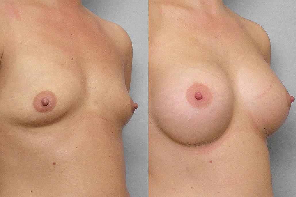 Bild på kvinnas högra halvprofil, före + efter bröstförstoring med implantat Mentor Cohesive III Medium high profile.