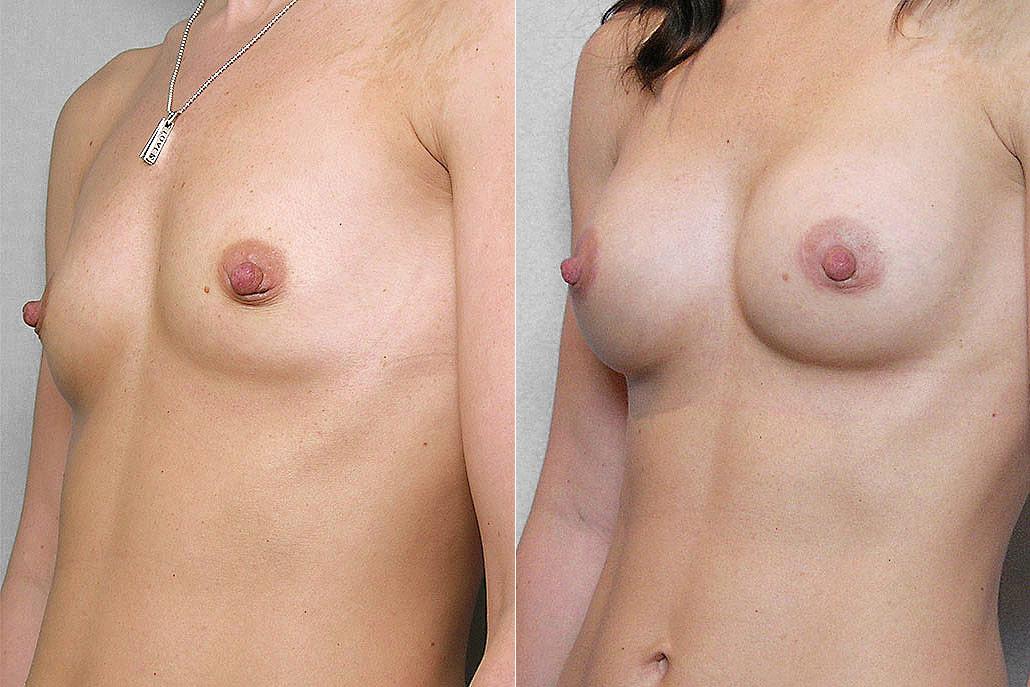 Före- och efterbild i vänster halvprofil, på resultat av bröstförstoring med implantat Mentor Siltex Round Cohesiv I.