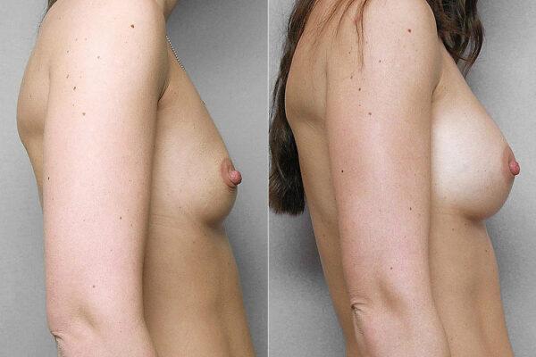 Före- och efterbild i höger profil, på resultat av bröstförstoring med implantat Mentor Siltex Round Cohesiv I.