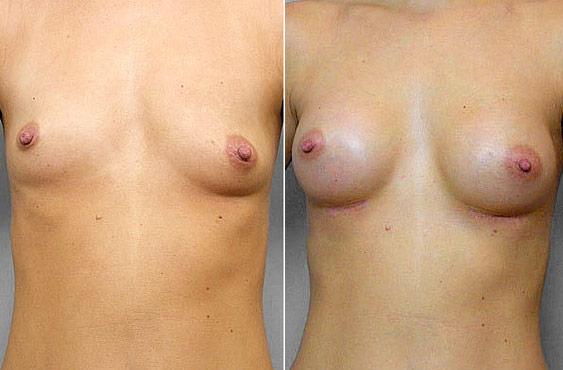 Bild på kvinna före och efter en genomförd bröstförstoring, med bröstimplantat Mentor Runda High Profile 200 cc.