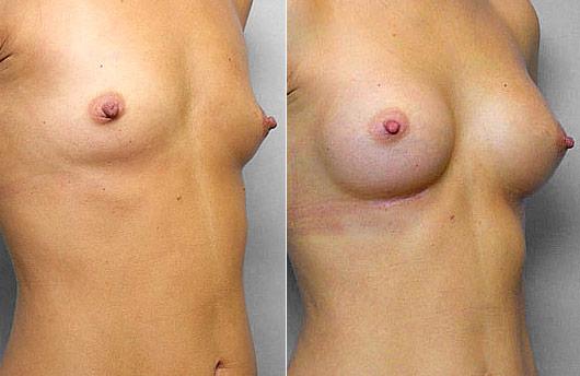 Bild på kvinna i höger halvprofil, före + efter bröstförstoring, med bröstimplantat Mentor Runda High Profile 200 cc.