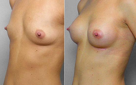 Bild på kvinna i vänster halvprofil, före + efter bröstförstoring, med bröstimplantat Mentor Runda High Profile 200 cc.