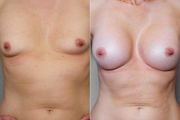 Före- och efterbild på kvinna som genomfört bröstförstoring med bröstimplantat Mentor Runda High Profile, 375 ml