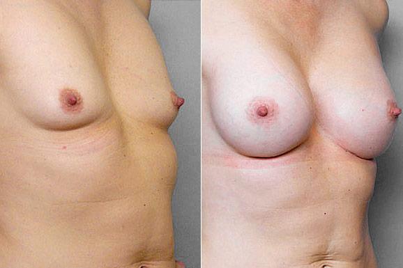 Före- + efterbild på kvinna i höger halvprofil, som gjort bröstförstoring med bröstimplantat Mentor Runda High Profile.