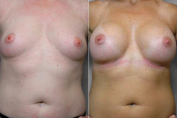 Före- och efterbild, på resultatet efter bröstförstoring med Bröstimplantat Mentor, anatomiska.