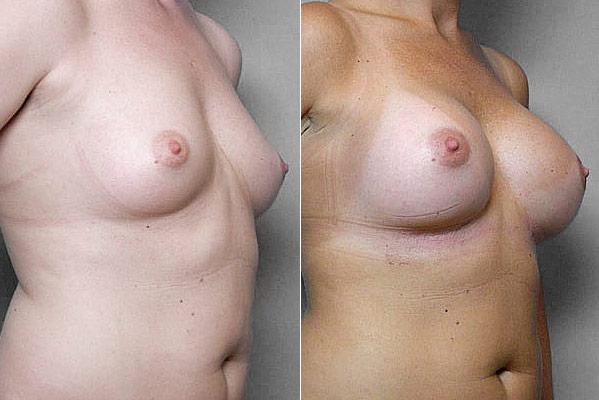 Före- och efterbild i höger halvprofil, på resultatet efter bröstförstoring med Bröstimplantat Mentor, anatomiska.