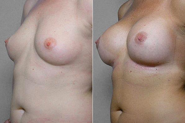 Före- och efterbild i vänster halvprofil, på resultatet efter bröstförstoring med Bröstimplantat Mentor, anatomiska.