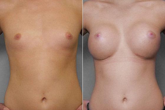 Bild på kvinna före och efter en genomförd bröstförstoring med bröstimplantat Mentor Runda High Profile.