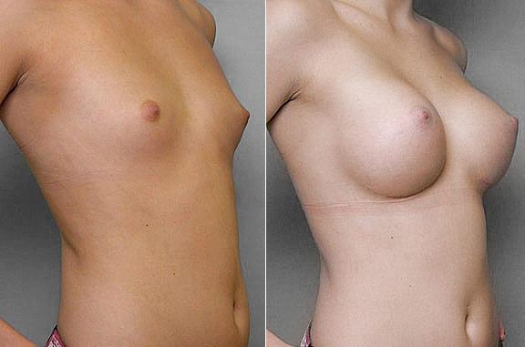 Bild på kvinna i höger halvprofil, före och efter bröstförstoring med bröstimplantat Mentor Runda High Profile.
