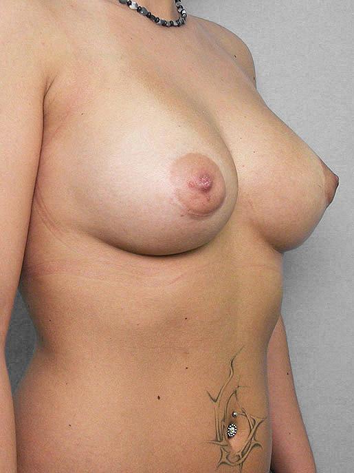 Erica har gjort bröstförstoring med implantat hos conturkliniken
