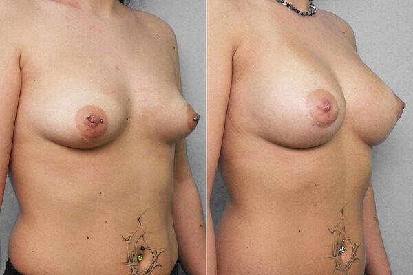 Före- och efterbild på kvinna i halvprofil som genomfört en bröstförstoring med bröstimplantat.
