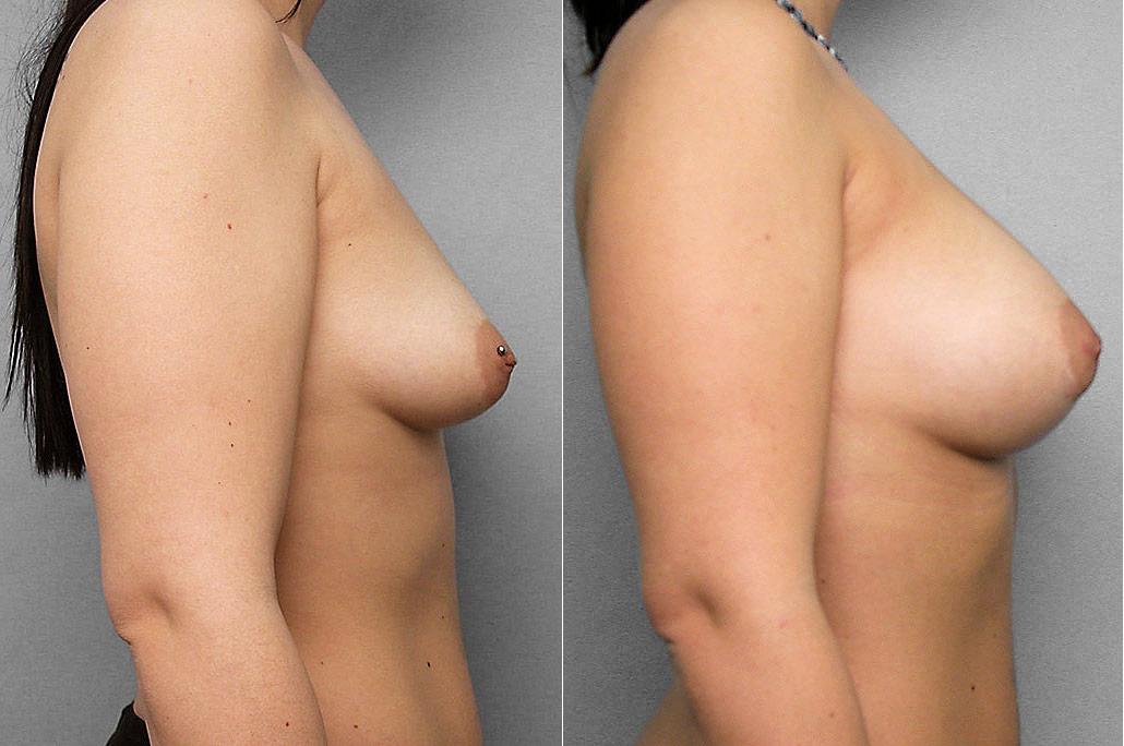 Före- och efterbild på kvinna i profil, som genomfört en bröstförstoring med bröstimplantat.