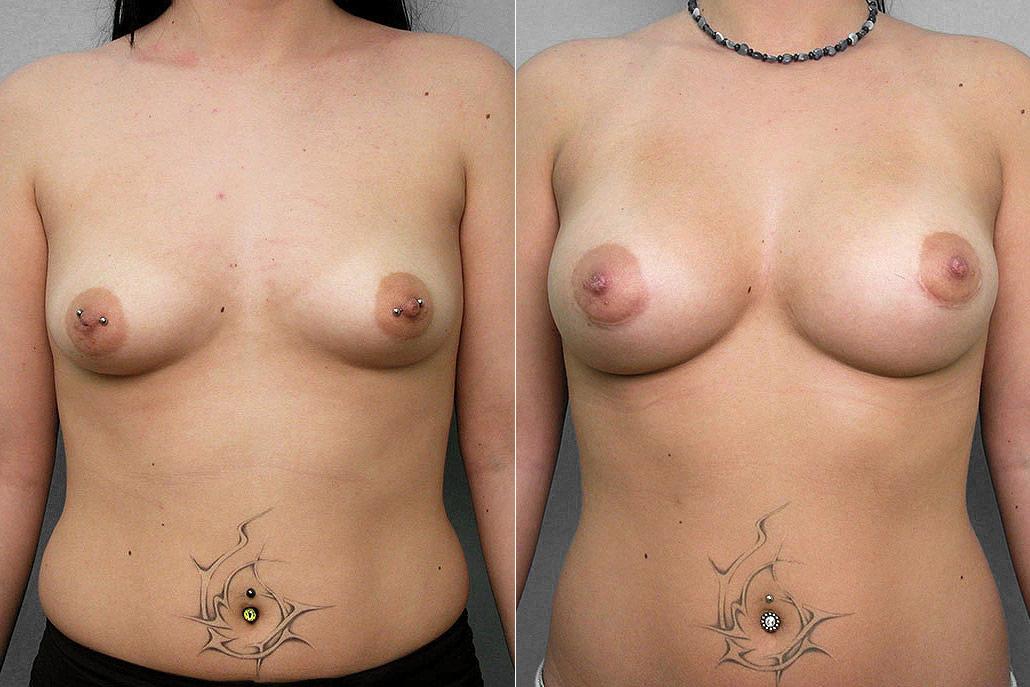 Före- och efterbild på kvinna som genomfört en bröstförstoring med bröstimplantat.