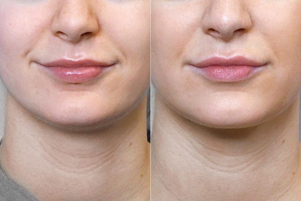 Detaljbild på kvinna före och efter fettsugning av haka, i kombination med Ultherapy
