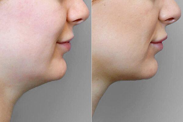 Detaljbild på kvinnas högra profil, före och efter fettsugning av haka, i kombination med Ultherapy