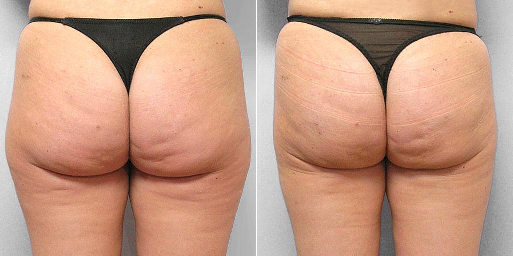 Före- och efterbild av person som genomfört fettsugning av lår, ben och rumpa.