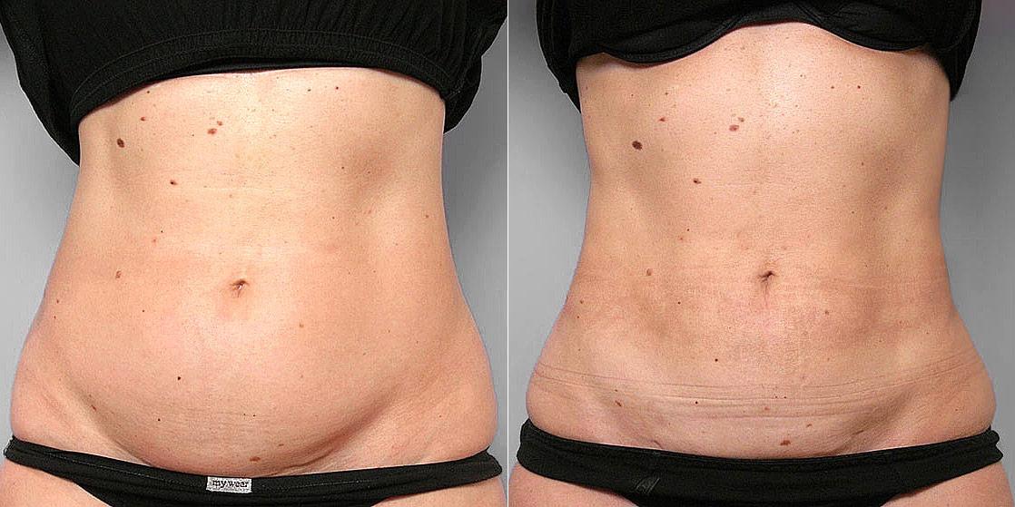Före- och efterbild av kvinna som genomgått en fettsugning mage, midja och höft.